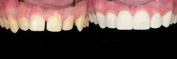 Smile Gallery - Ogden Dental, Naperville Dentist