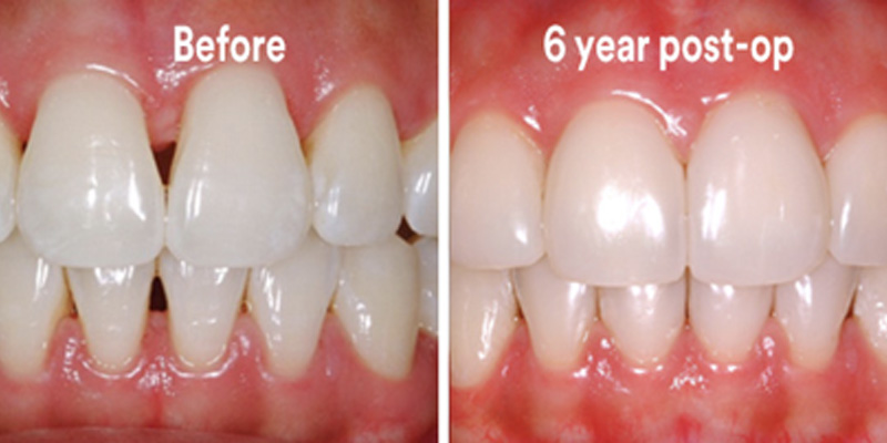 BioClear Diastema Closure and Black Triangle Closure  - Ogden Dental, Naperville Dentist