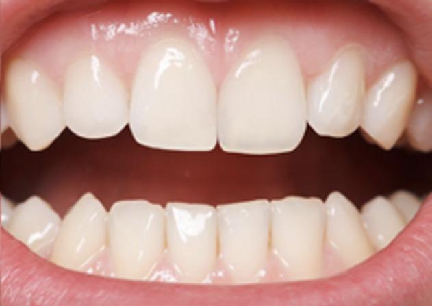 Cosmetic Bonding  - Ogden Dental, Naperville Dentist