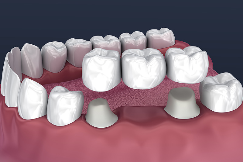 Crowns and Bridges, Inlays and Onlays  - Ogden Dental, Naperville Dentist