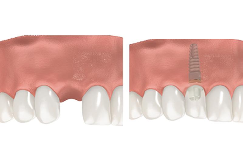 Dental Implants - Ogden Dental, Naperville Dentist