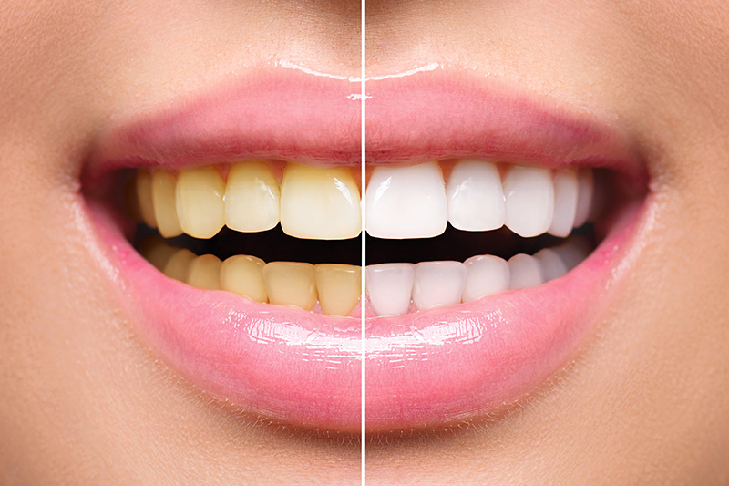 Teeth Whitening - Ogden Dental, Naperville Dentist