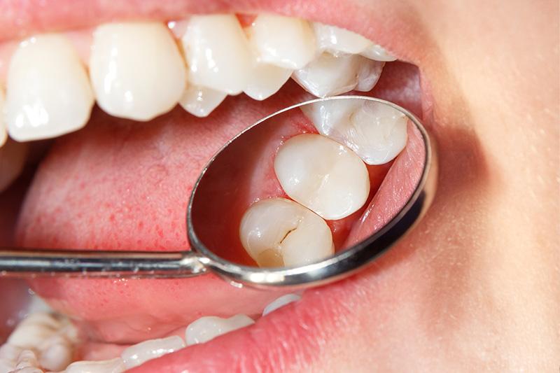 Tooth Colored Composite Fillings  - Ogden Dental, Naperville Dentist