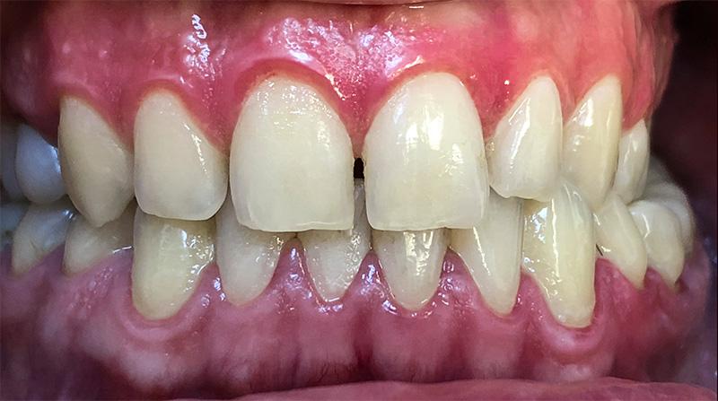 Veneers  - Ogden Dental, Naperville Dentist