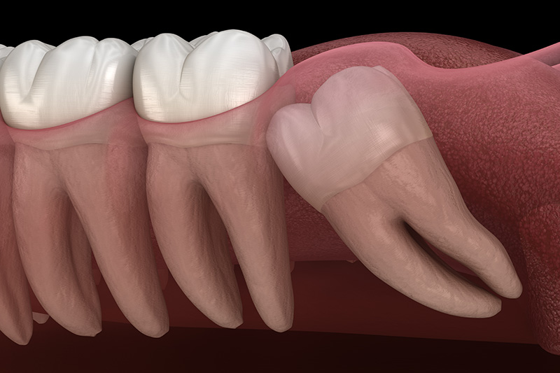 Wisdom Teeth Extractions (with Sedation)  - Ogden Dental, Naperville Dentist